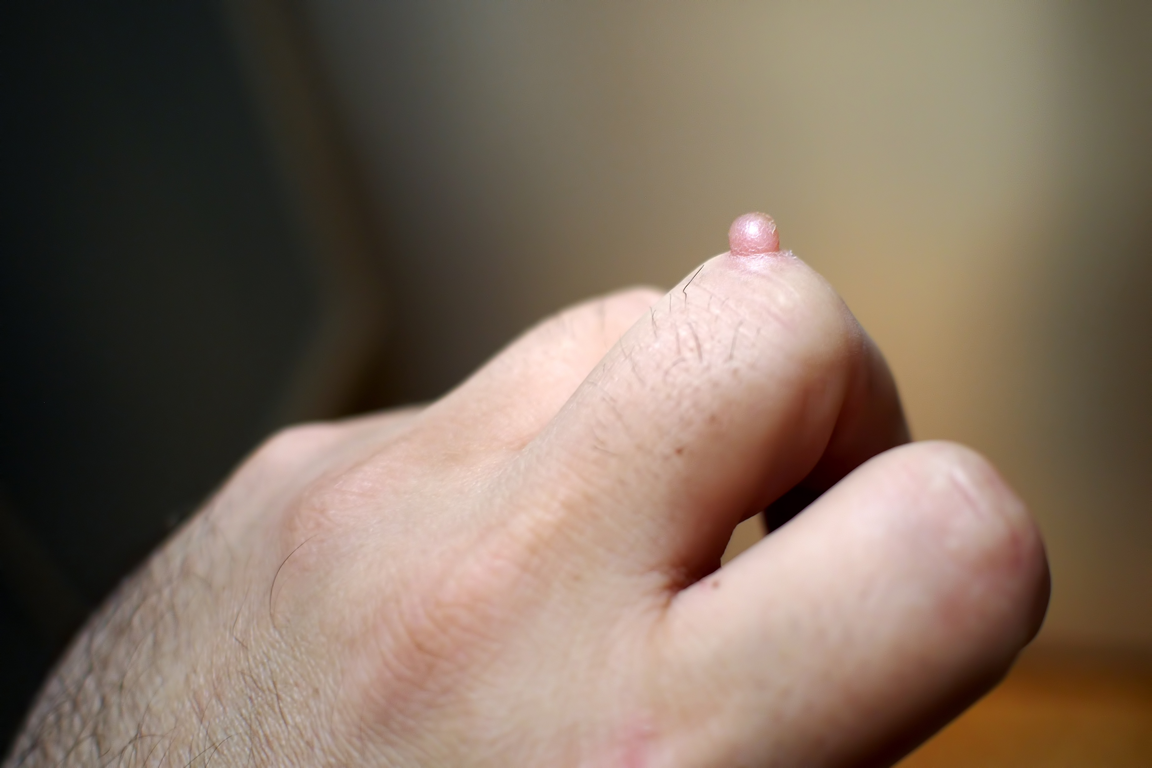 What Are Warts Is There A Remedy For Skin Wart Removal Quora