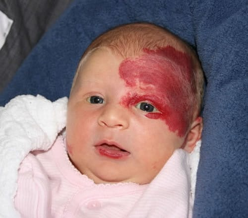 How is a stork bite on a baby's forehead formed? - Quora