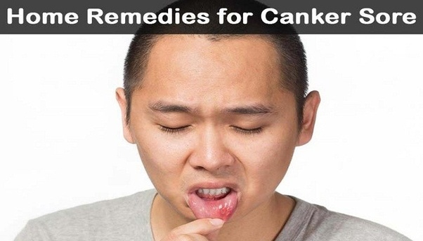 What's the best way to get rid of a canker sore? I have a canker