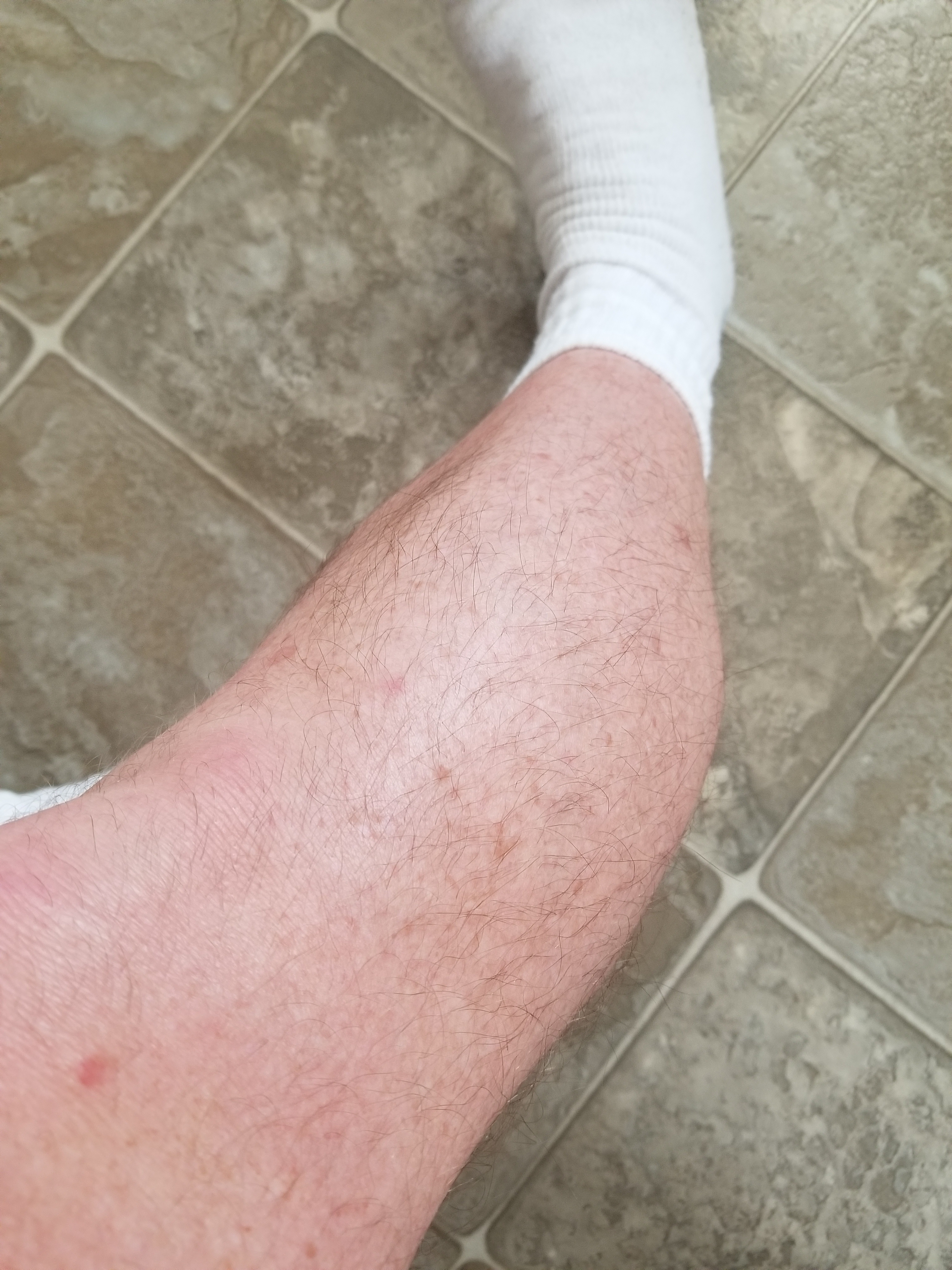 So My Leg Hair Is Patchy On My Thighs And Normal Looking On The Bottom  Half. I Want To Know If There Is A Way For It To Evenly Grow And Not