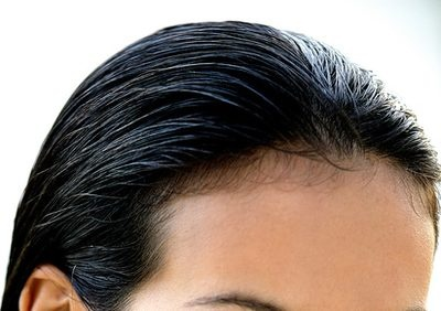 How To Hide Or Fix A Receding Hair Line Quora