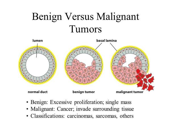 cancer vs benign tumor)