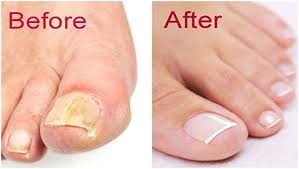 What are the natural treatments for nail fungus ? - Quora
