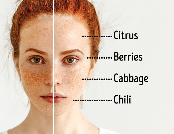 How to get rid of dark eye circles - Quora