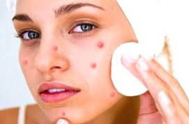 How to get rid of a pimple in one night