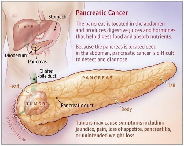 pancreatic cancer quora)
