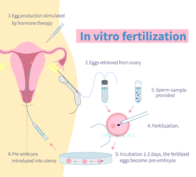 How much is the cost of ivf treatment in India? - Quora