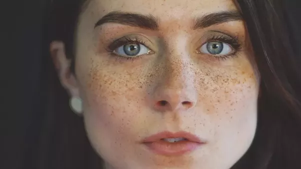how to get rid of brown freckles