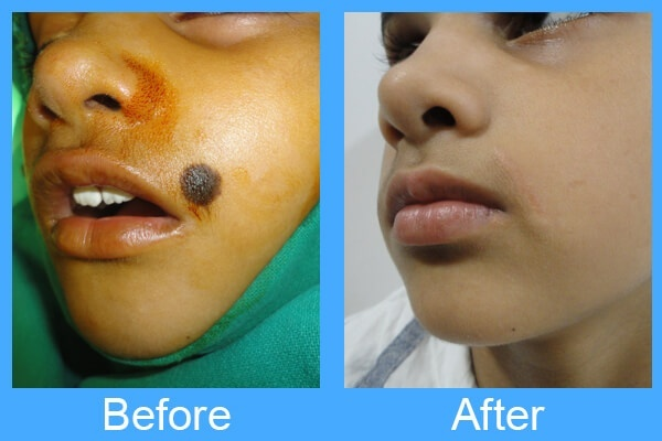 How doctors remove facial moler