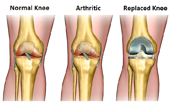 What is minimum cost for knee replacement surgery in india quora knee replacement surgery is a surgical procedure to improve the surface of a damaged knee which is usually caused by arthritis or any severe injury ccuart Choice Image