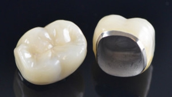 Which is the best cap for front teeth, zirconia or ceramic ...