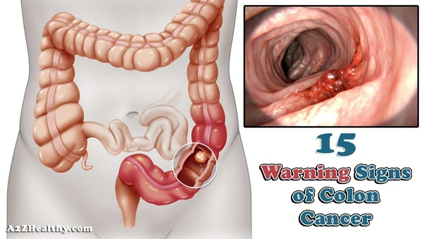 What are the symptoms of colon cancer? - Quora