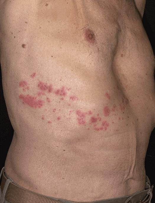 What Are Shingles Quora