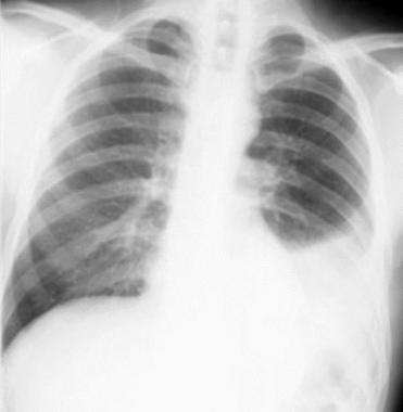What is the difference between pneumonia, pleural effusion ...