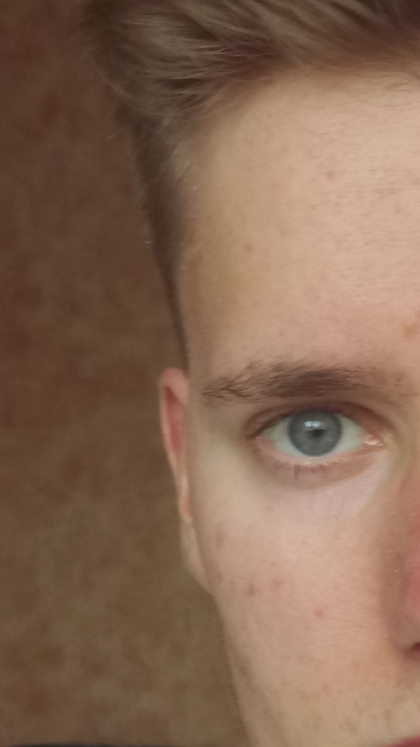How Common Is It For Sociopathspsychopaths To Have The Shark Eyes