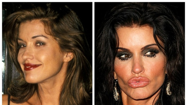 84 best images about Don't Mess With Nature on Pinterest ...  |Plastic Surgery Procedure Gone Wrong