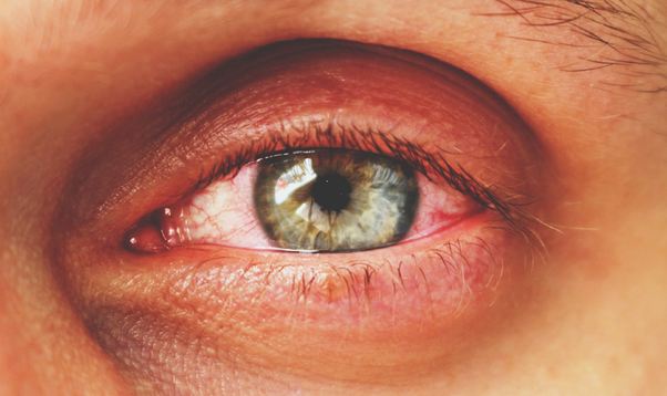 queratitis sintomas de diabetes