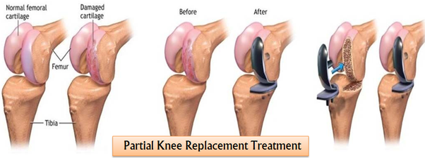 Partial Knee Replacement >> How Much Does A Partial Knee Replacement Cost In India Quora