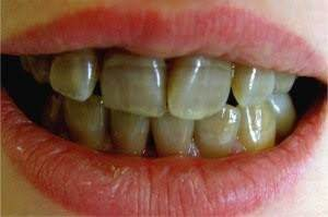 Why do I have black lines on my teeth?