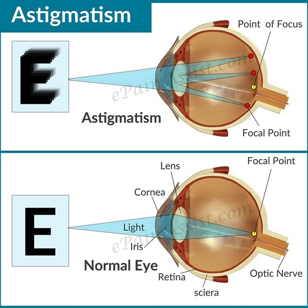 contact lens and myopia introduction myopia Myopia control with orthokeratology contact lenses in spain: refractive and   the introduction of reverse geometry contact lens designs, highly oxygen-.
