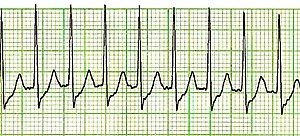 What is an example of an abnormal ECG reading? - Quora