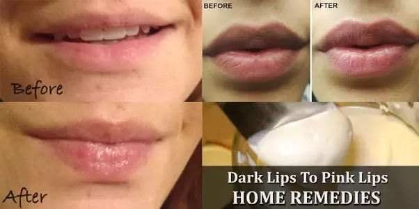 How to get pink lips naturally without makeup, because my