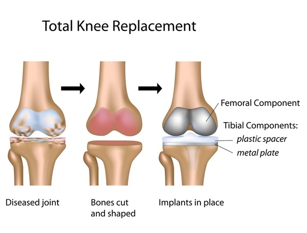Is knee replacement surgery successful in India? - Quora