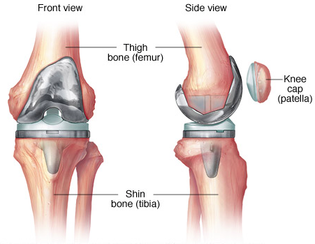 Is knee replacement surgery successful in india quora how can you prepare yourself before knee replacement surgery ccuart Choice Image