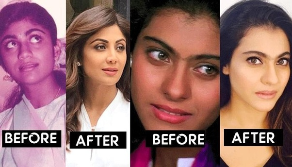 Which is the best Clinic for Permanent Skin Lightening