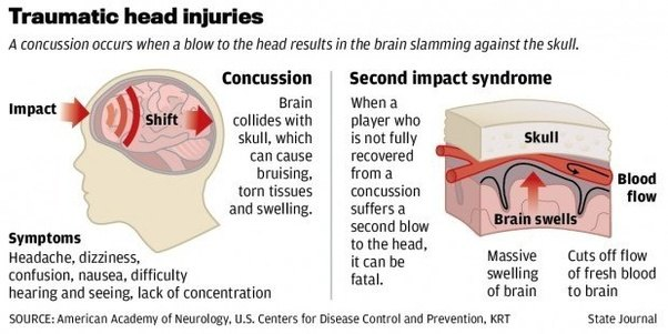 diagram of concussion mri how badly does physical trauma affect the brain? - quora #4