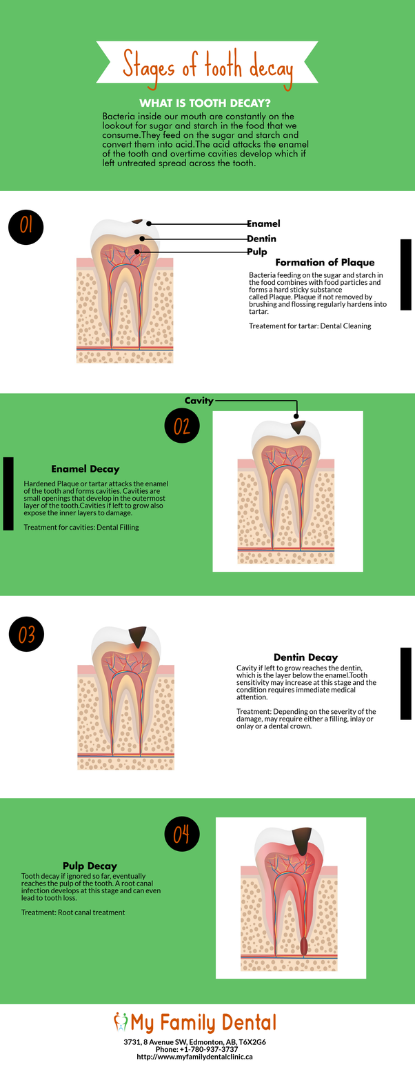 What are the stages of tooth decay? - Quora