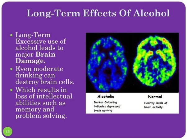 Is Weed Or Alcohol More Damaging To The Body Mind Quora
