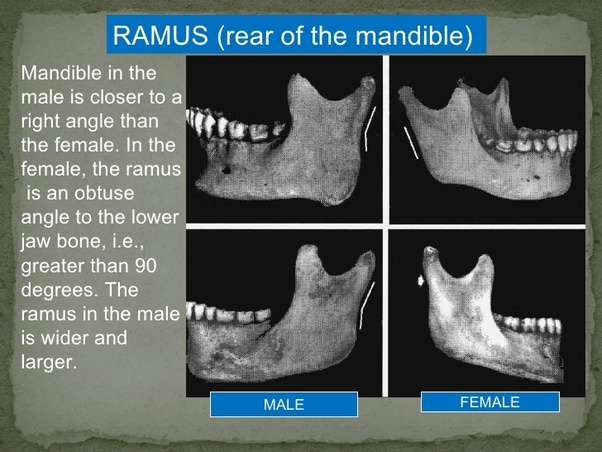 Are There Differences Between Male And Female Skulls - Quora-7557