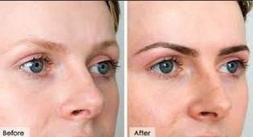 vaseline as eye cream? - Essential Day Spa