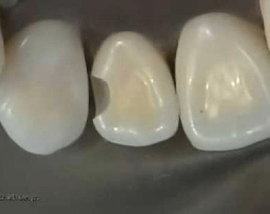 How are cavity fillings done between teeth? - Quora