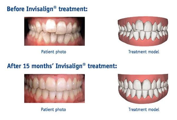 Can Invisalign be used to fix gaps? - Quora
