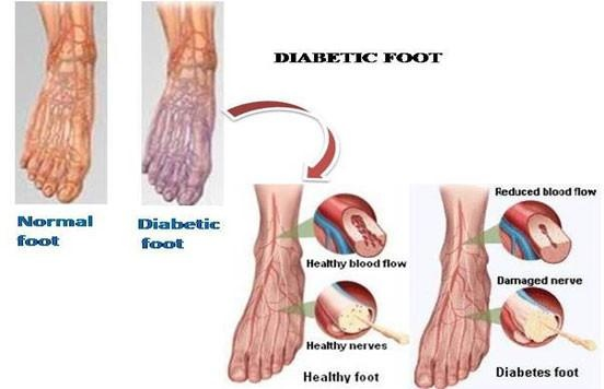 what test for diabetic neuropathy