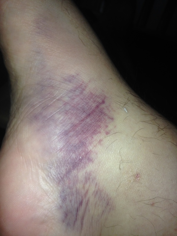 What does it mean when you have a bruise that doesn't hurt? - Quora