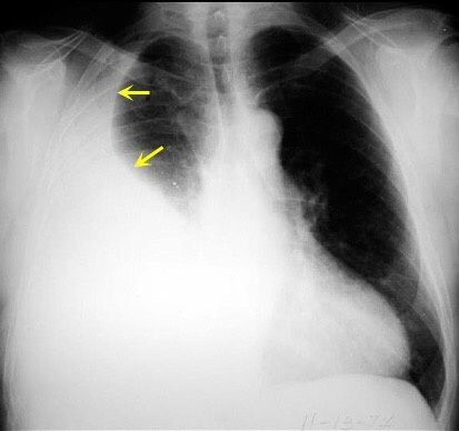 How to differentiate between massive lung consolidation, a ...