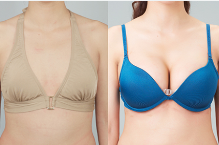 What Is The Best For Breast Enhancement Breast Fat Transfer Or