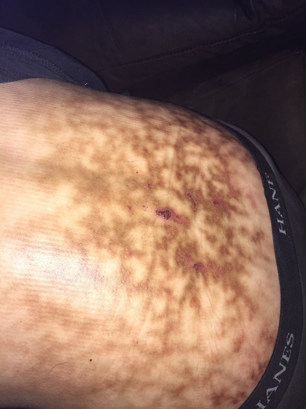 What is the best way to heal severe 2nd degree burns on my ...
