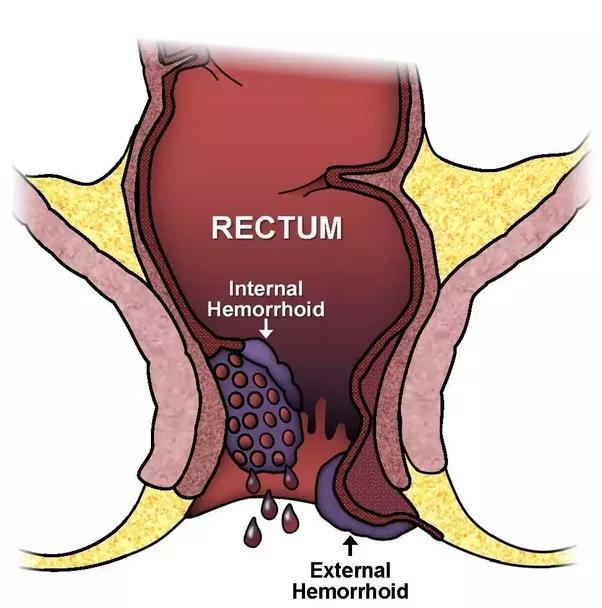 Causes of throbbing in anus