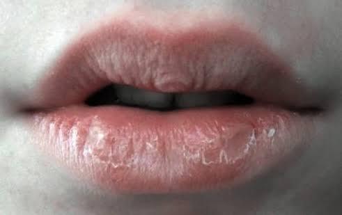 Bagaimana Cara Memerahkan Bibir Dengan Caramu Quora