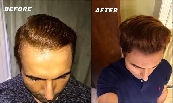 Grow Hair On Receding Hairline Naturally