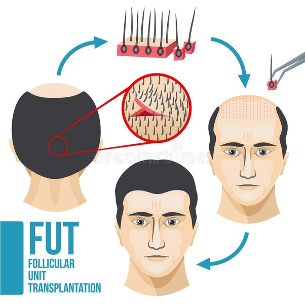 How Much Does A Hair Transplant Cost In India What Is The Process