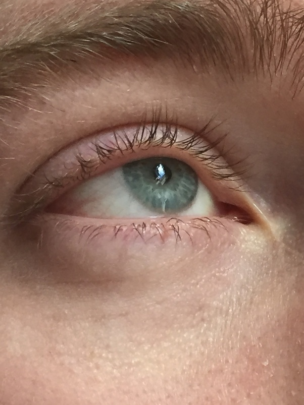 What Eye Colour Is This Quora