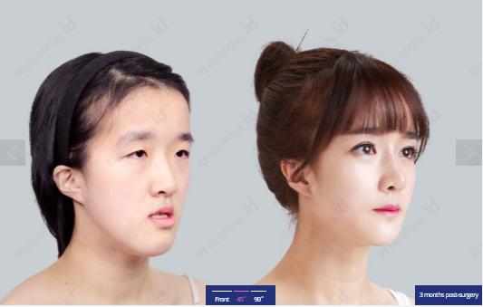 Which is the best country for rhinoplasty (plastic surgery