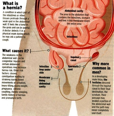 Is Hernia Common In Males Quora