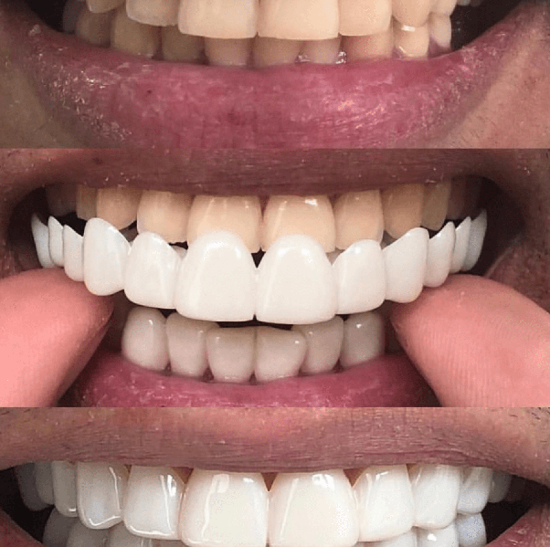 What do you think of clip on veneers for that instant