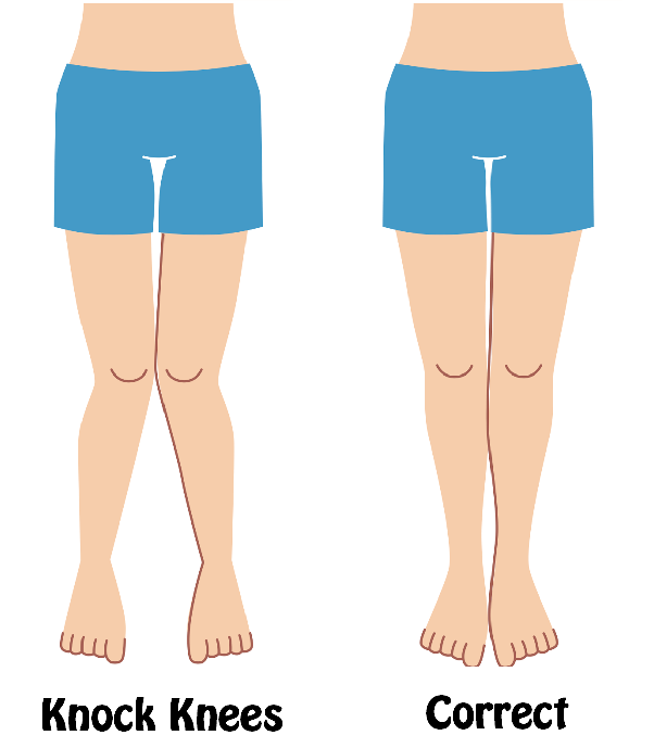 What can I do about knock knees? - Quora